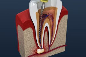 root canal therapy on tooth