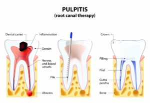 process of root canal therapy