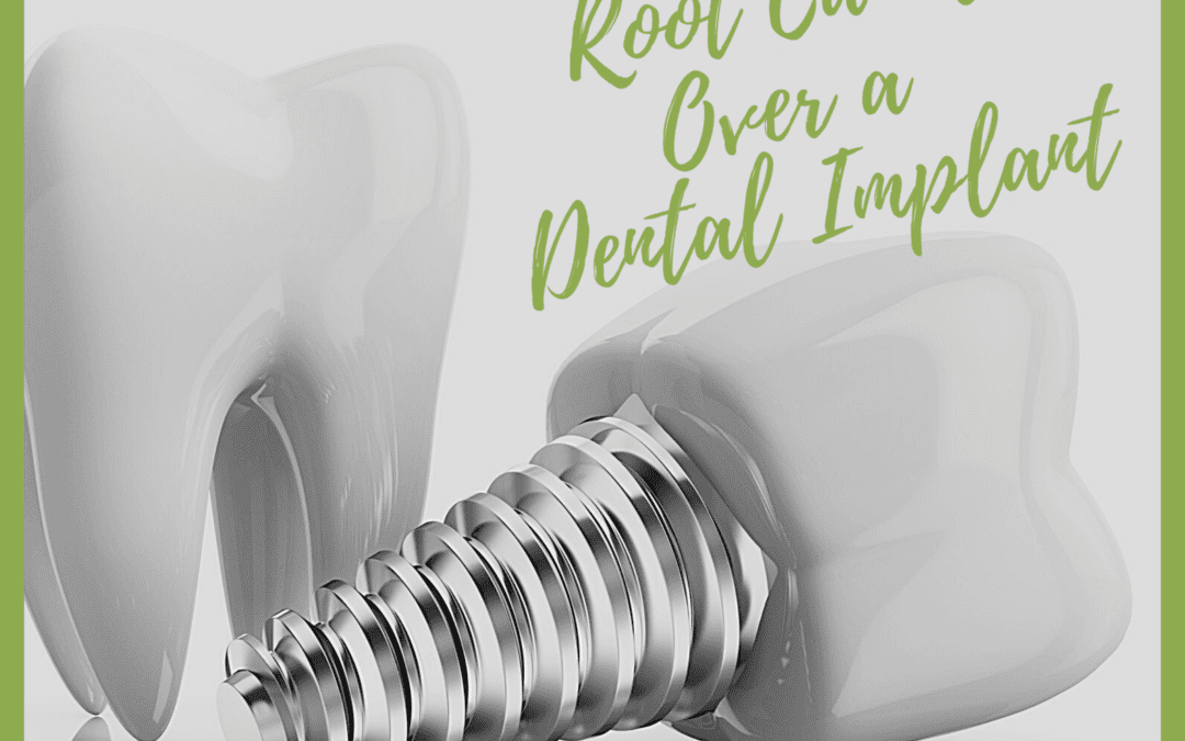 Why to Choose a Root Canal Over a Dental Implant