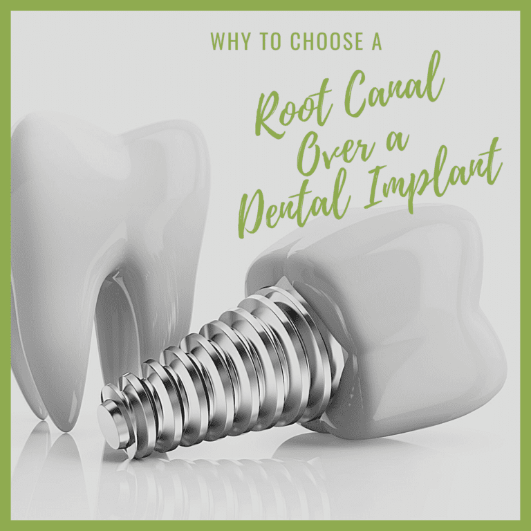 Why to Choose a Root Canal Over Dental Implants